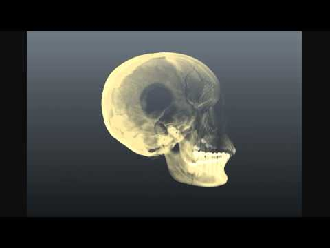 Human Skull thumbnail