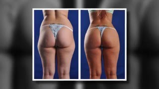 Phoenix Liposuction Results: Outer Thighs