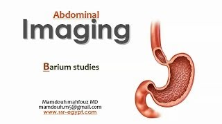 Imaging of Esophageal lesions (Dec 2013) - Dr Mamdouh Mahfouz (In Arabic)