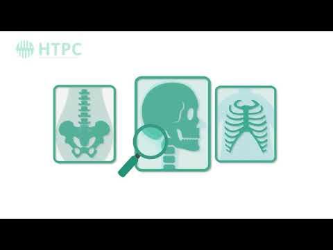 0 - Отосклероз вуха: симптоми і лікування