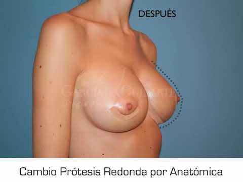 Cambio de prótesis de mama redonda por anatómica - Dr. Guilarte