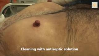 Part 3 - How the male nipple reduction procedure is done under Local anaesthetics as a day case