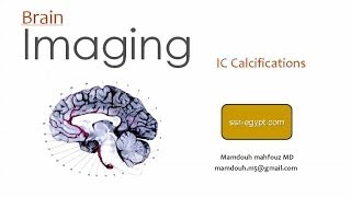 Imaging of IntraCranial Calcifications - DRE 4 - Dr Mamdouh Mahfouz