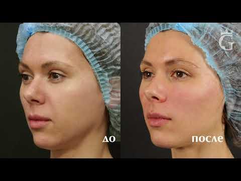 Коррекция носогубных складок и глубоких морщин