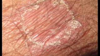 RING WORM TREATMENT SHOWING ALL HEALING STAGES.wmv