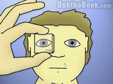 Ophthalmology: tropias versus phorias