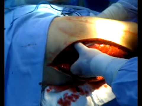 Lower limb fasciotomy -  Compartment syndrome