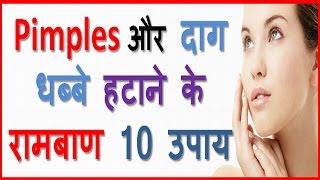 Pimple Hatane Ka Tarika Pimples Removal On Face At Home