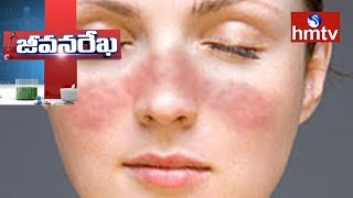 Systemic Lupus Erythematosus(SLE) Information | Homeocare International | Jeevana Rekha |Health News