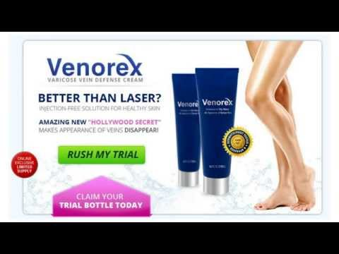 Venorex Varicose Veins Home Treatment Review