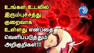 உங்கள் உடலில் இரும்புச்சத்து குறைவாக உள்ளது என்பதை வெளிப்படுத்தும் அறிகுறிகள்!!! – Tamil TV