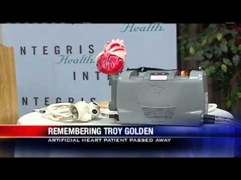 Okla. 'Total' Artificial Heart Recipient Dies