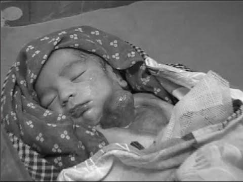 चैत्र ७ गते अनौठो बच्चाको जन्म,बच्चाको मुटु शरीरबाहिरै- POWER NEWS