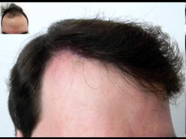 Cirugia capilar por técnica FUE : 2525 Uf en el frontal