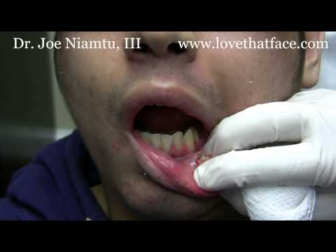 Lip Piercing Removal-Piercings Stuck in Lip.wmv