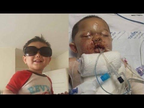 Swat Team Attacks Baby Baby Burned by Swat Team