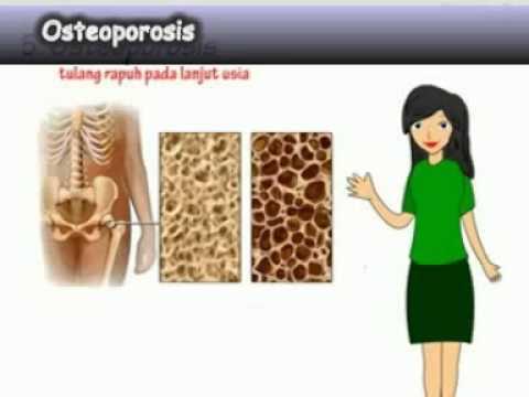 Kelainan Dan Gangguan Pada Tulang Kelainan Dan Penyakit Pada