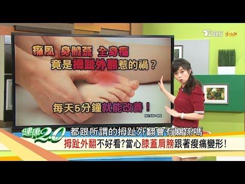 台灣-健康2.0-20180325 拇指外翻不好看? 當心膝蓋肩膀跟著痠痛變形!