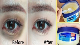 Apply Vaseline on Your Eye lash and See the Magic | Remove Dark Circles in Just 3 Days