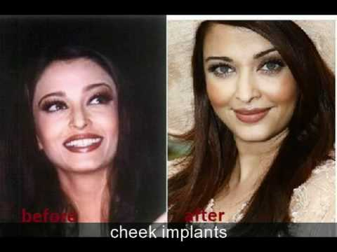 Aishwarya Rai had plastic surgery, before and after photos Music Videos