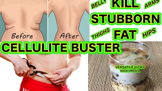 How to Get Rid of Cellulite | Cellulite Removal | Cellulite Buster Treatment | Kill Stubborn Fat