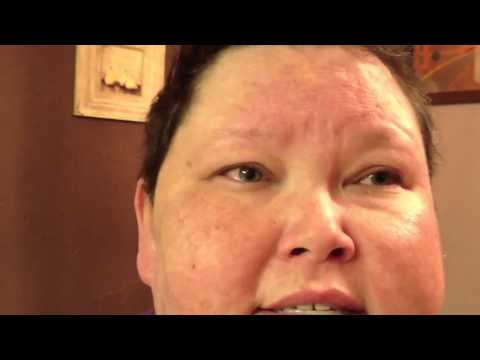 Lupus 11-20-11 Lupus and Teeth ... Stem Cell Transplant