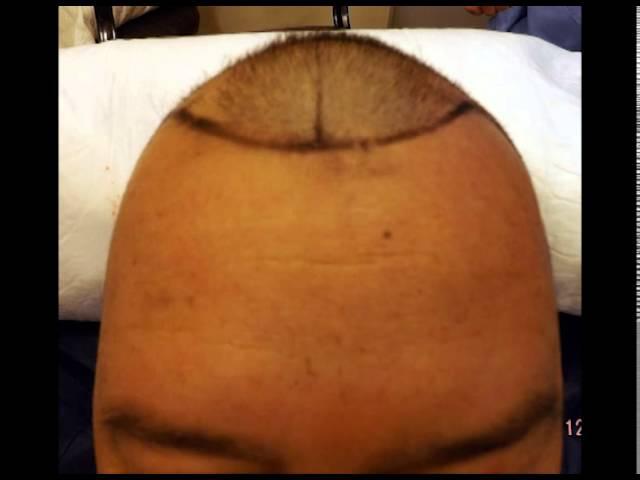 Cirugia capilar por método FUE : 2000 Uf