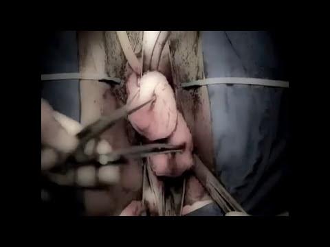 El arte de la histerectomia vaginal