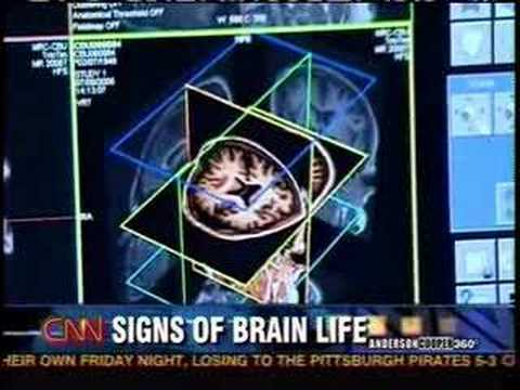 CNN News Report On Vegetative State