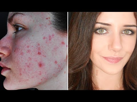 How To Cover Acne & Scars   Everyday Makeup Transformation Routine