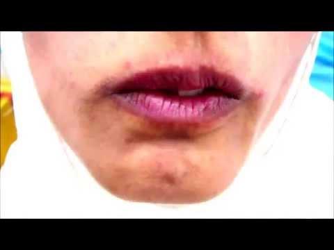 Oro facial dyskinesia
