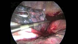 Pulmonary artery bleeding caused during VATS lobectomy