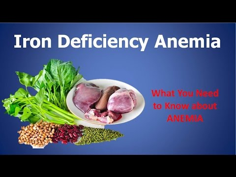 Iron Decficiency Anemia: Can You Get Rid Of Anemia With This?