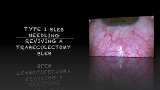 Download Type 1 Bleb Needling of Trabeculectomy 3Gp Mp4