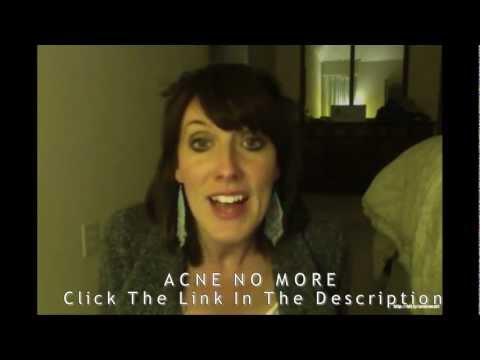 ACNE NO MORE REVIEW - Are You Curing Your ACNE or Making It WORSE? | HOME Remedies for ACNE