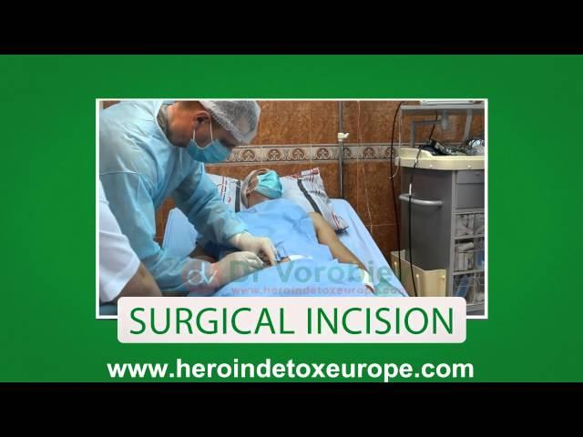 Naltrexone implant procedure European clinic in 2014