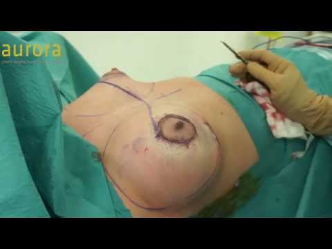 Breast Enlargement and Areola Reduction with 390cc Breast Implants