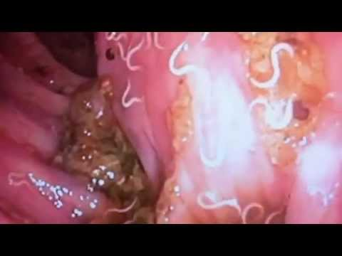 Pinworms Found On Colonoscopy Youtube