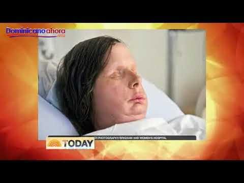 Mujer desfigurada por chimpancé muestra su nuevo rostro