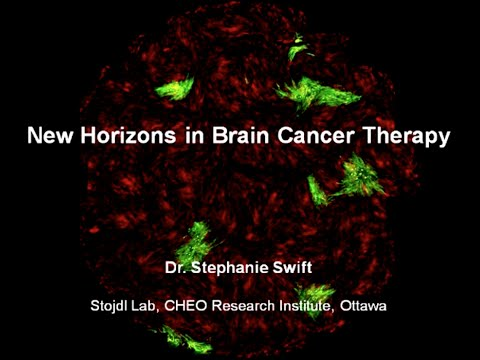 New Horizons in Brain Cancer Therapy