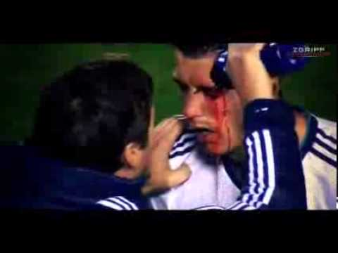 Cristiano Ronaldo - Horror Injury (takes an elbow to the eye) vs. Levante  11_11_2012 HD