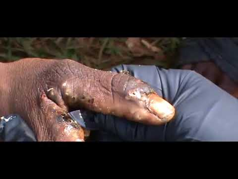 Javan's many painful jiggers dug out (2 of 3)