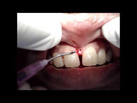 Frenectomy Training Share The Knownledge