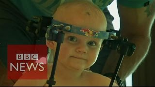 Toddler's head re-attached to spine - BBC News
