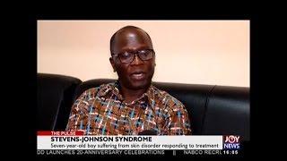 Stevenson-Johnson Syndrome - The Pulse on JoyNews (6-8-18)