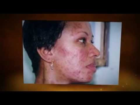How to remove acne fast. How to stop acne breakouts naturally.