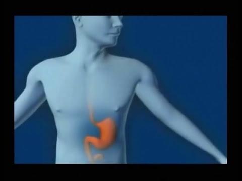 ¿Qué es el helicobacter pylori?