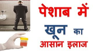 पेशाब में खून आने का इलाज Peshab Mein Khoon Ka ilaj Blood in Urine Home Remedies in Hindi