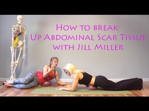 (How To Get Rid of Abdominal Scar Tissue with Jill Miller)