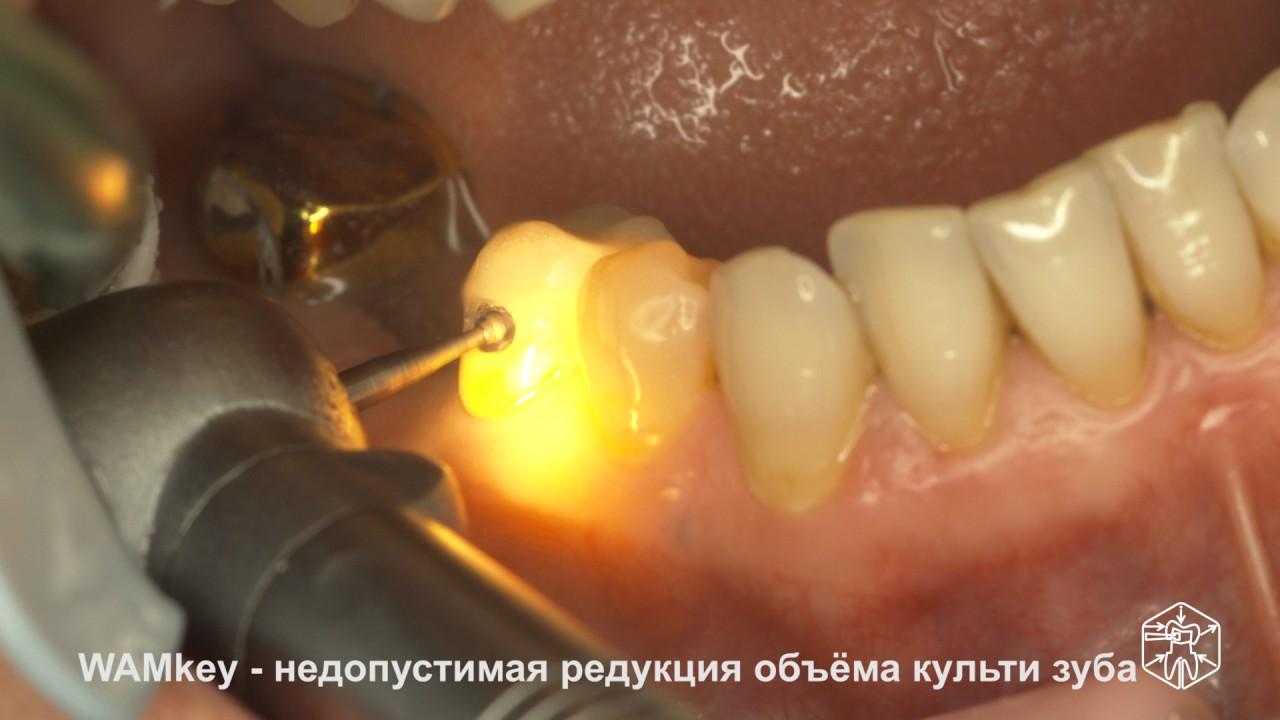 К чему снится снял коронку с зуба